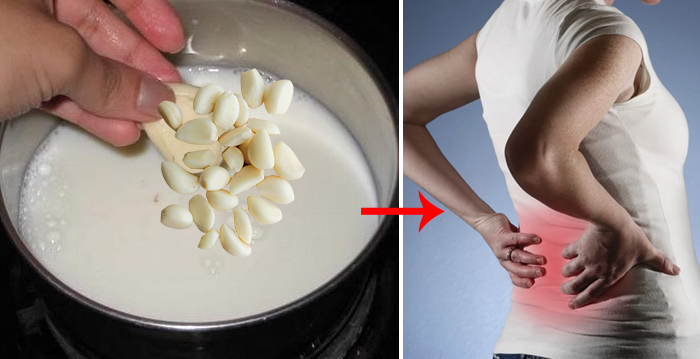 Garlic Milk Home Remedy To Give Relief From Sciatica & Back Pain | The Nutrient Well